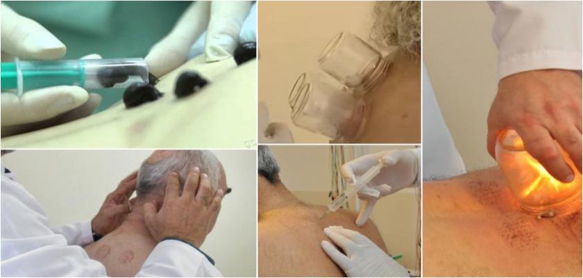 Tıbbi Hacamat İle Anemi Tedavisi