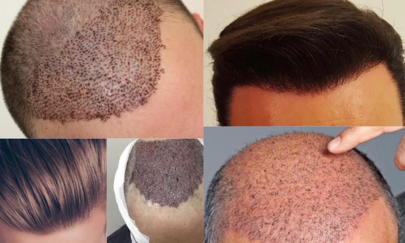 Saç Ekimi Yaptırma Yöntemleri